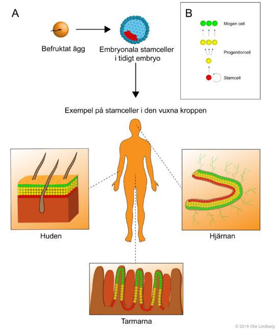 Stamceller och cancer 1