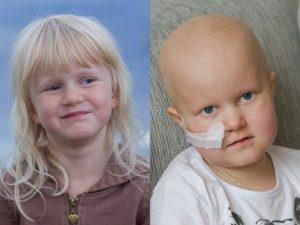 Frisk Juva och kortisonsvullen, kal Juva - svårt att tro att det är samma barn...