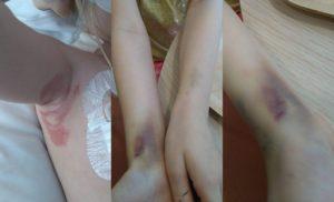 Svamp i armhålan och rejäla blåmärken i början av behandlingen.